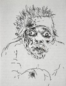 Otto Dix; Wounded Soldier; 1924; etching
