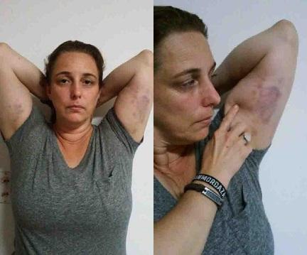 tania-bruises